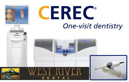 Cerec Dental Imaging by West River Dental in Bend Oregon